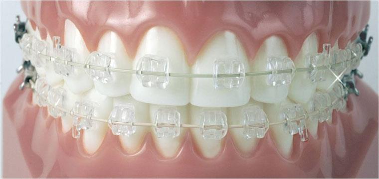 CALVDENT ortodoncja na światowym poziomie